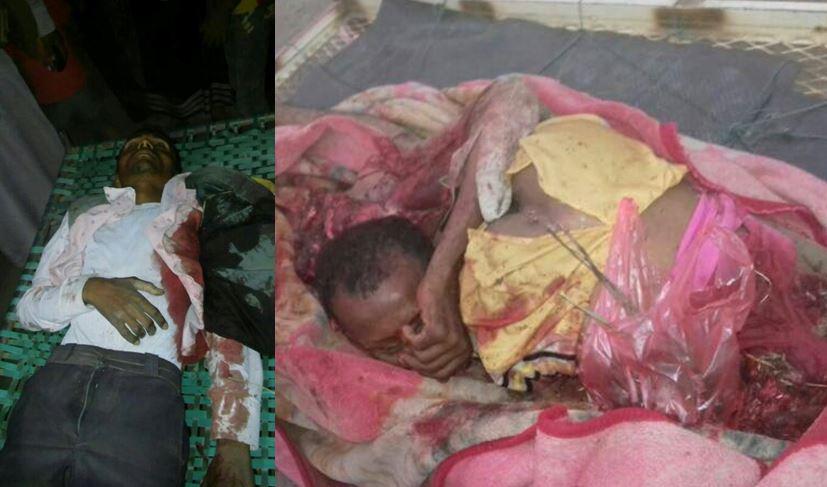 بالصور| ضحايا جريمة طيران العدوان في مصنع للملح بالحديدة