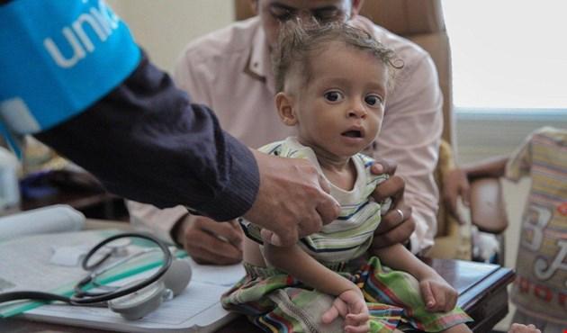 """تحذير: الكوليرا يخرج عن """"السيطرة"""" في اليمن .. طفل واحد يصاب كل دقيقة"""