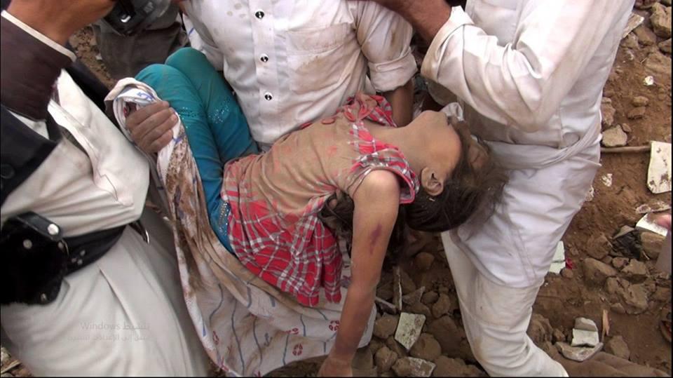 مشاهد أليمة لضحايا #مجزرة_محضة_صعدة (أسماء + صور)