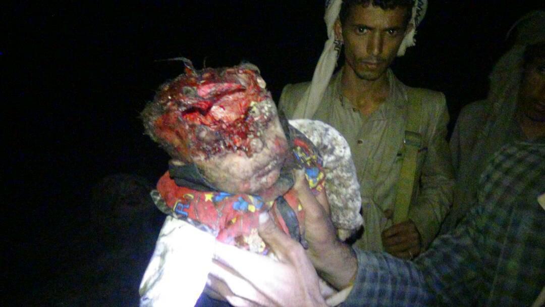 مشاهد مؤلمة من مجزرة مروّعة ارتكبها العدوان بمأرب ضحيتها 12 مواطناً أغلبهم نساء وأطفال