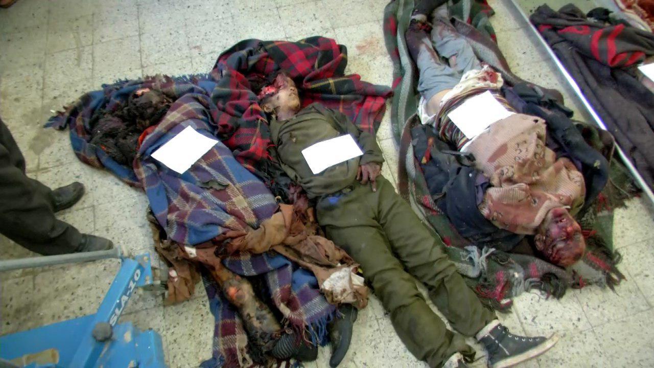 استشهاد وإصابة 84 مواطنا بينهم أطفال ونساء في 3 جرائم للعدوان بصنعاء و ذمار و الحديدة (صور)