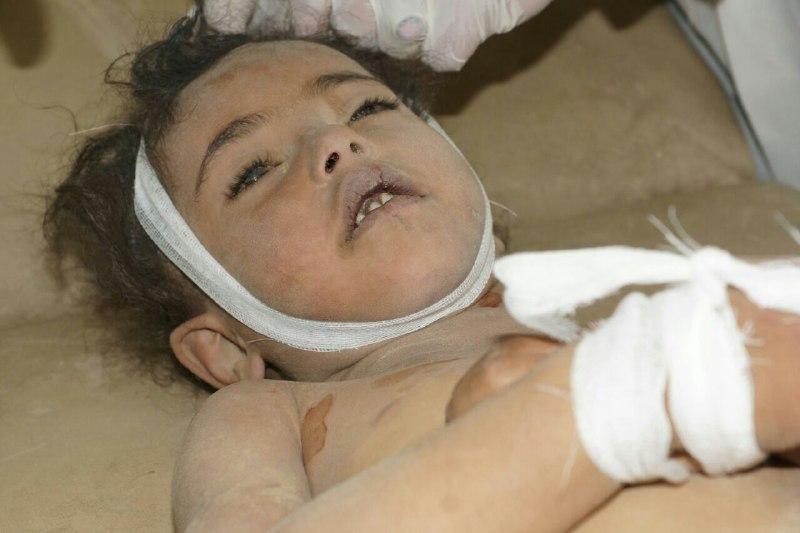 صور وأسماء.. استشهاد وجرح مجموعة من الأطفال في جريمة ارتكبها تحالف العدوان بصعدة