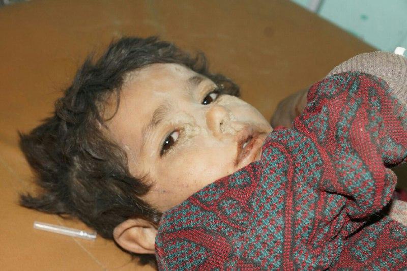 صعدة: استشهاد طفل متأثرا بجراحه جراء غارات لطيران العدوان ومواطن برصاص حرس الحدود السعودي
