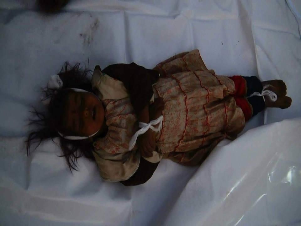 مشاهد مؤلمة.. جثث مجموعة من الأطفال استشهدوا بجريمة ارتكبها تحالف العدوان بصعدة