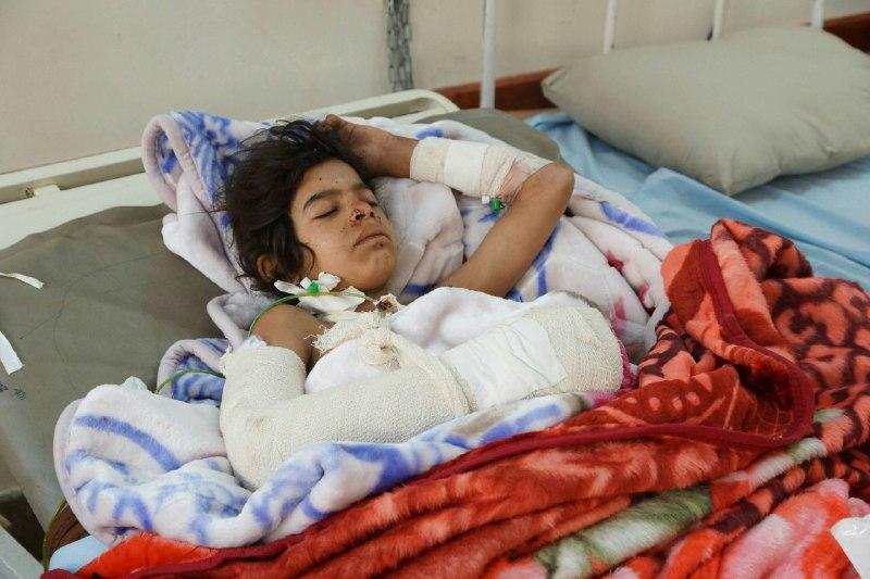 بالصور.. إصابة طفلة (12 عام) وامرأتين بانفجار قنابل عنقودية في صعدة